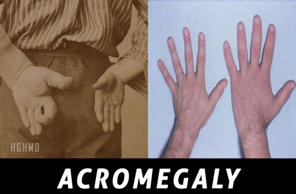 Acromegaly
