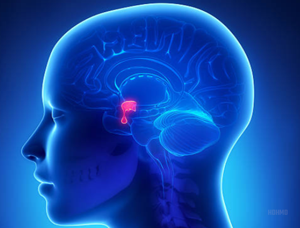 In most cases, HGH replacement therapy is brought about by a tumor on the pituitary organ (pituitary adenoma)